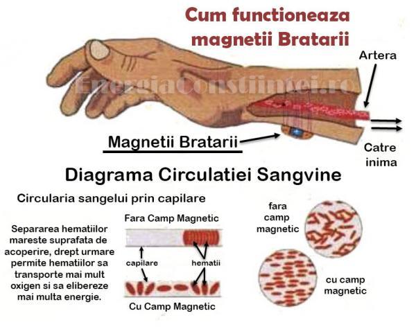 Efect Bratara Magnetica