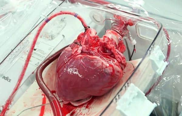 transplant-de-inima